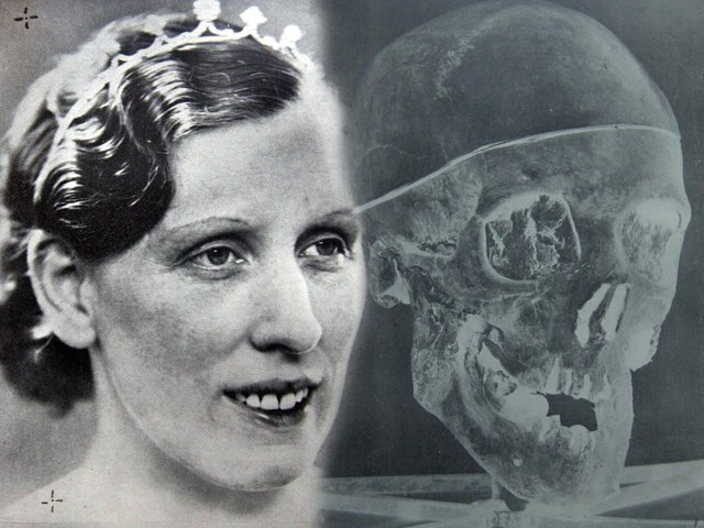 Photo of murder victim Isabella Ruxton next to photo of one of the skulls of Buck Ruxton's victims